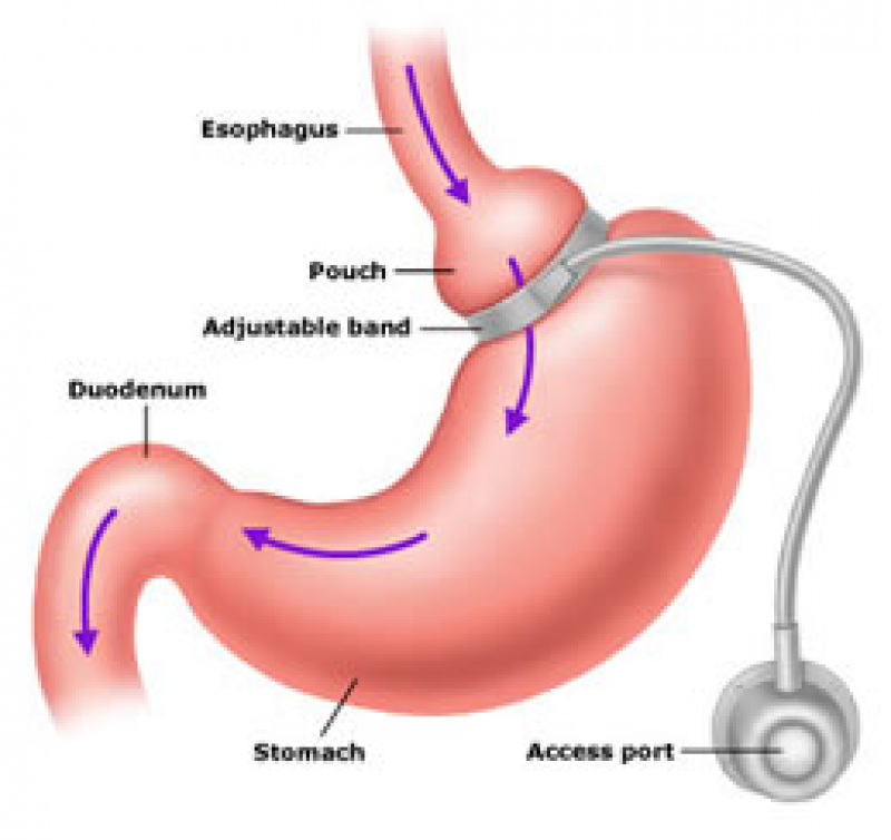 Visualisatie van een maagbandje of gastric banding - Obesitaskliniek Tielt