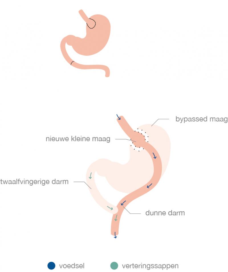 Visualisatie van een gastric bypass of maagoverbrugging - Obesitaskliniek Tielt