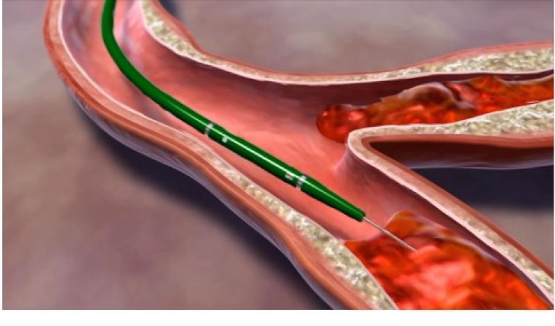 Angiojet eerste fase: inspuiten klonteroplossende medicatie in het stolsel
