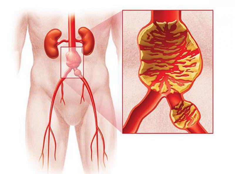 Visualisatie van een aneurysma
