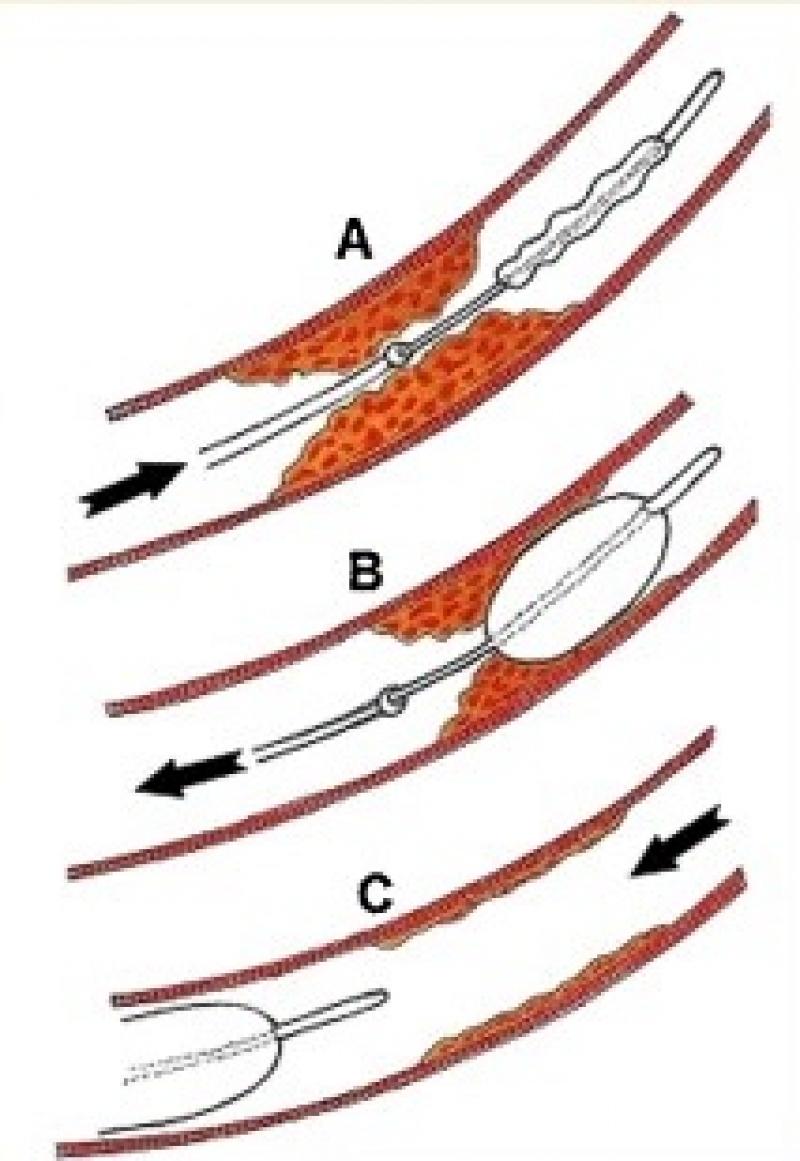 Visualisatie embolectomie via fogarty ballon