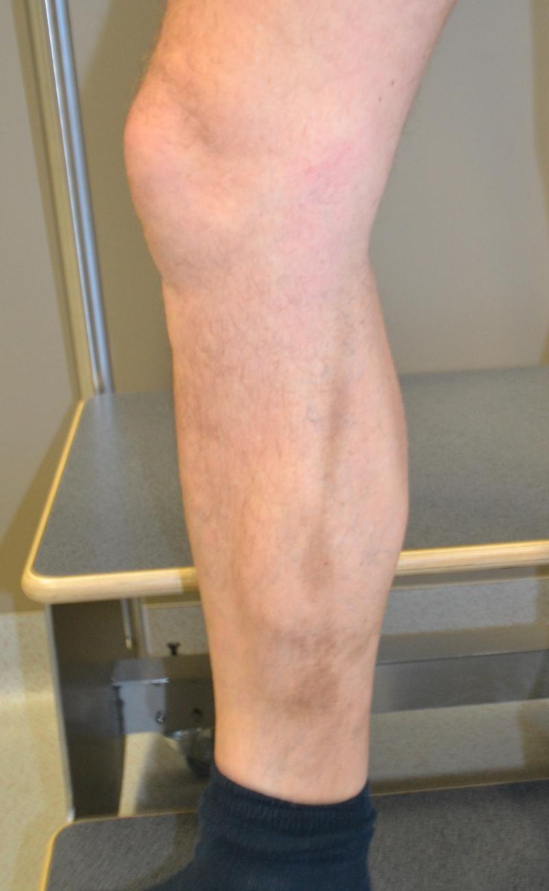 Een huidverkleuring bij een patiënt na spataderbehandeling