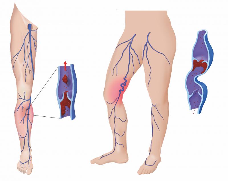 Bloedklontervorming in een spatader. Deze kunnen soms loskomen en met de b bloedstroom meegevoerd worden naar de longen.