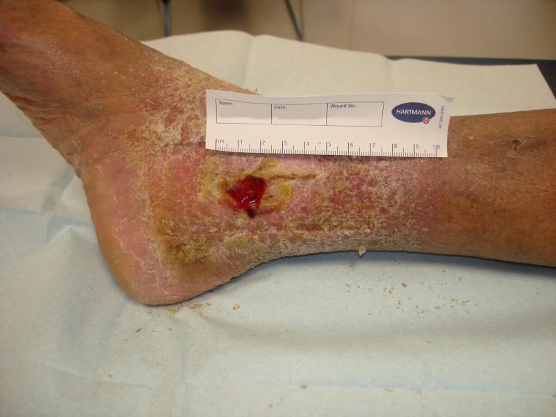 Voorbeeld van een vebeus ulcus