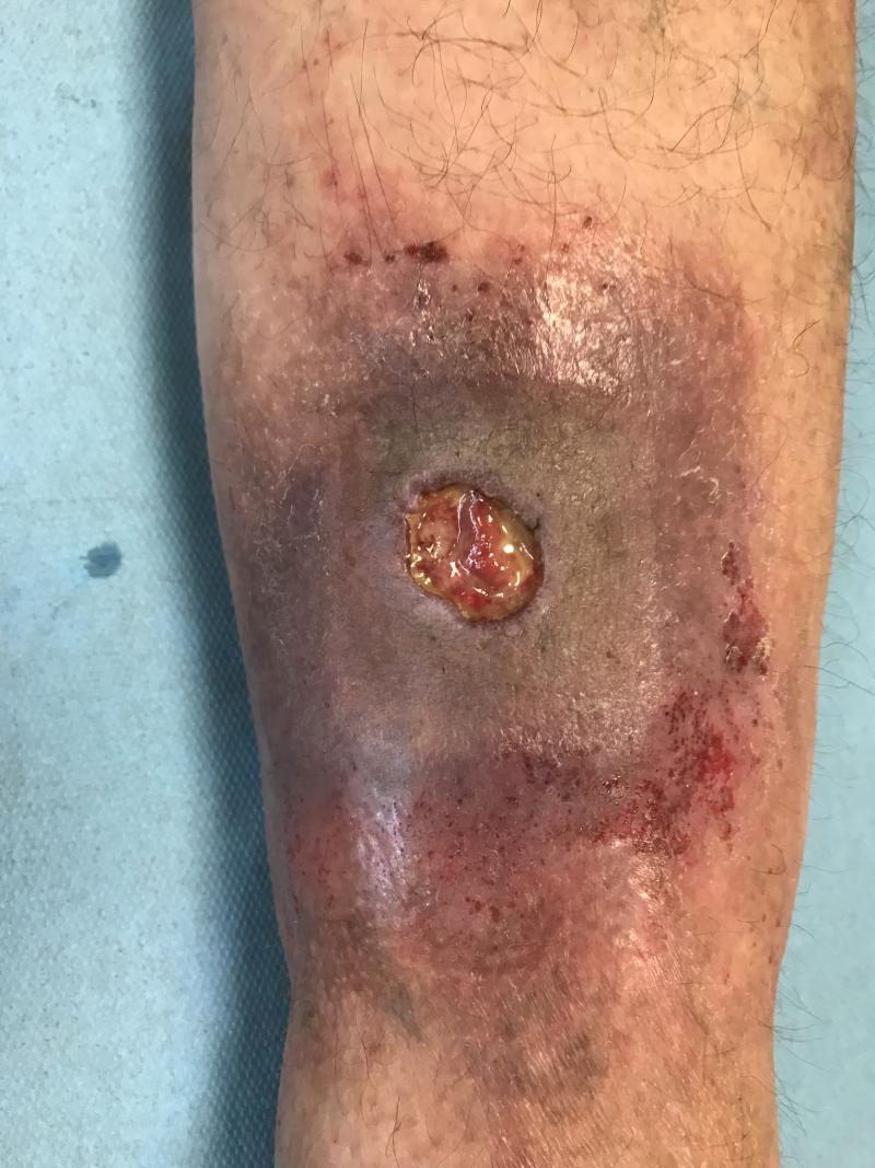 Open beenwonde of ulcus met huidveranderingen.