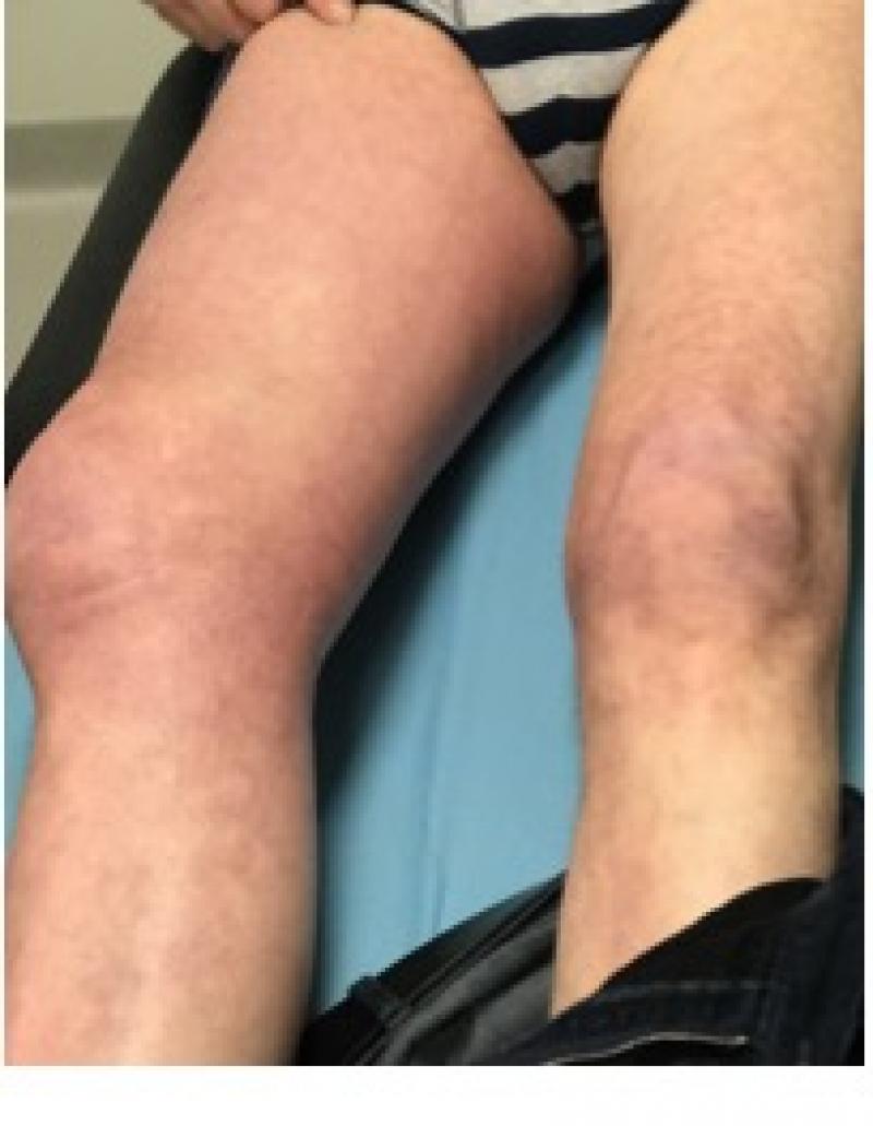 Figuur 4: gezwollen been ten gevolge van trombose