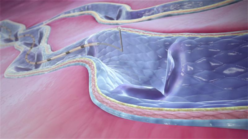 Gecombineerd mechanisch en chemisch beschadigen van de aderwand leidt tot de volledige verschrompeling van de behandelde ader.
